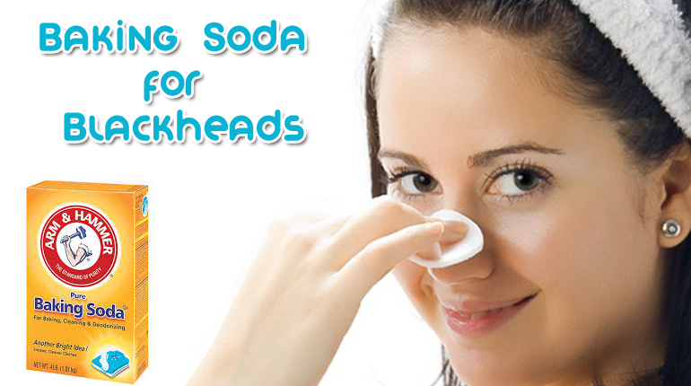 Baking soda treats blackheads