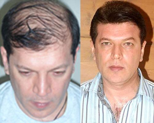 Aditya Pancholi Hair Transplant Surgery