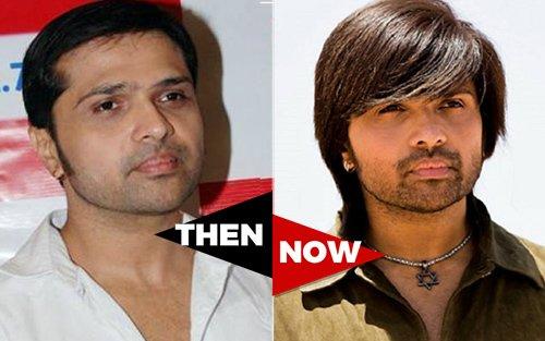 Himesh Reshammiya Before and After Hair Transplant