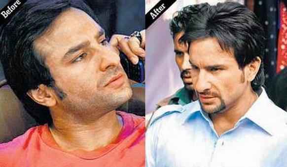 Saif Ali Khan Hair Transplant