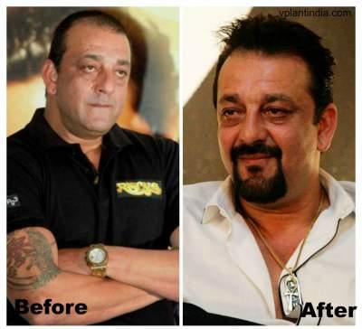 Sanjay Dutt Hair Transplant